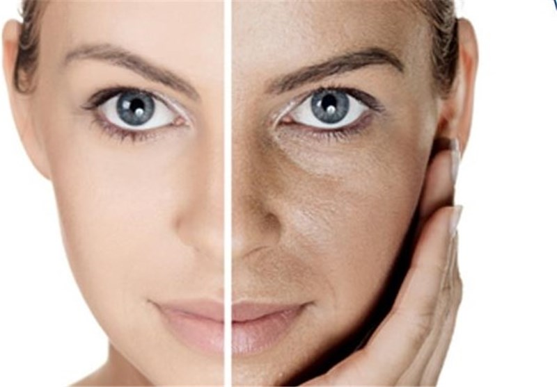«غم و اندوه» عامل بروز بسیاری از بیماریهای پوستی است